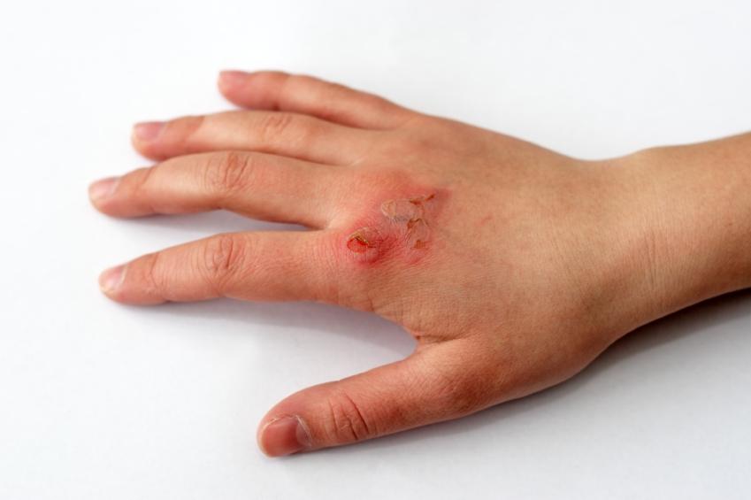 Burn Treatment | Automobile Accident Treatment | New Port Richey FL | Spring Hill FL | Trinity FL